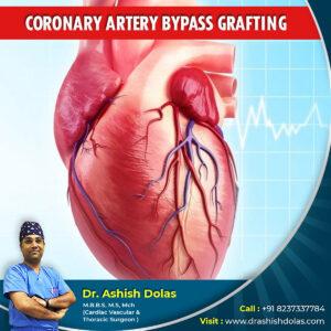 Coronary Artery Bypass Grafting_Dr. Ashish Dolas