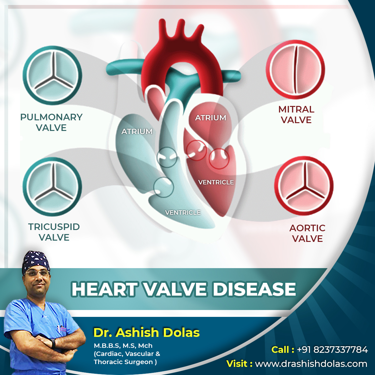 Heart Valve Disease_Article by Dr. Ashish Dolas