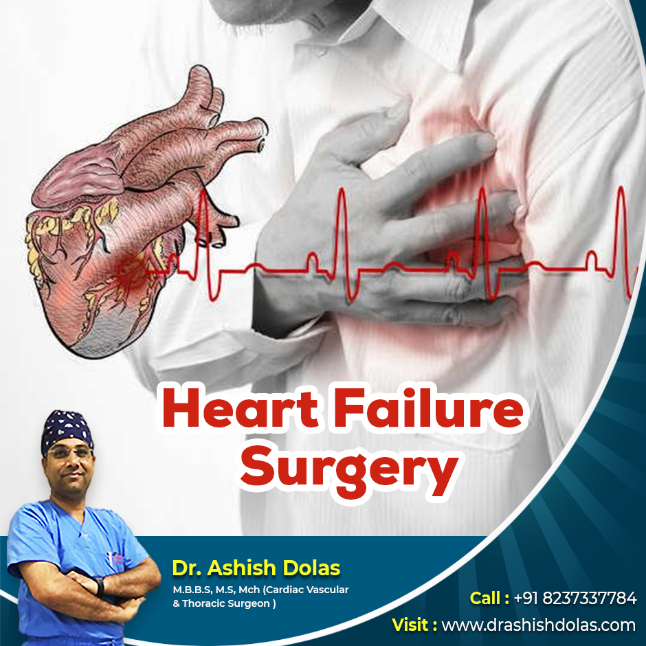 Heart Failure Surgery_Dr. Ashish Dolas