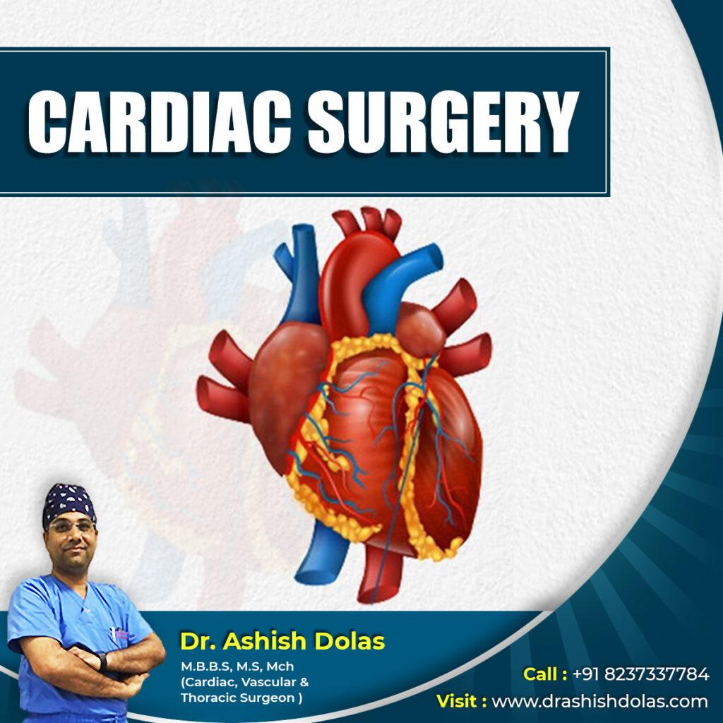 Cardiac Surgery_Dr. Ashish Dolas