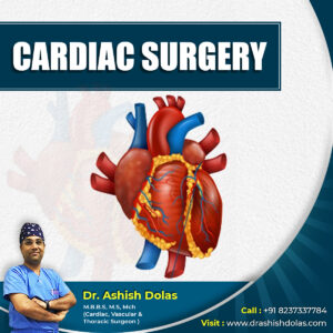 Cardiac Surgery_Dr. Ashish Dolas
