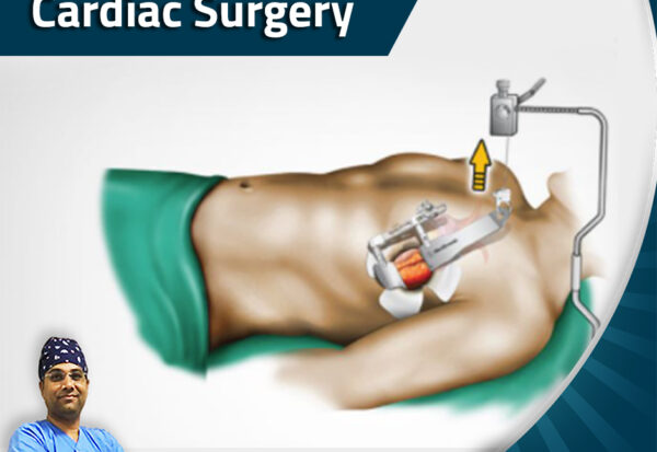 Minimally Invasive Cardiac Surgery_Dr. Ashish Dolas