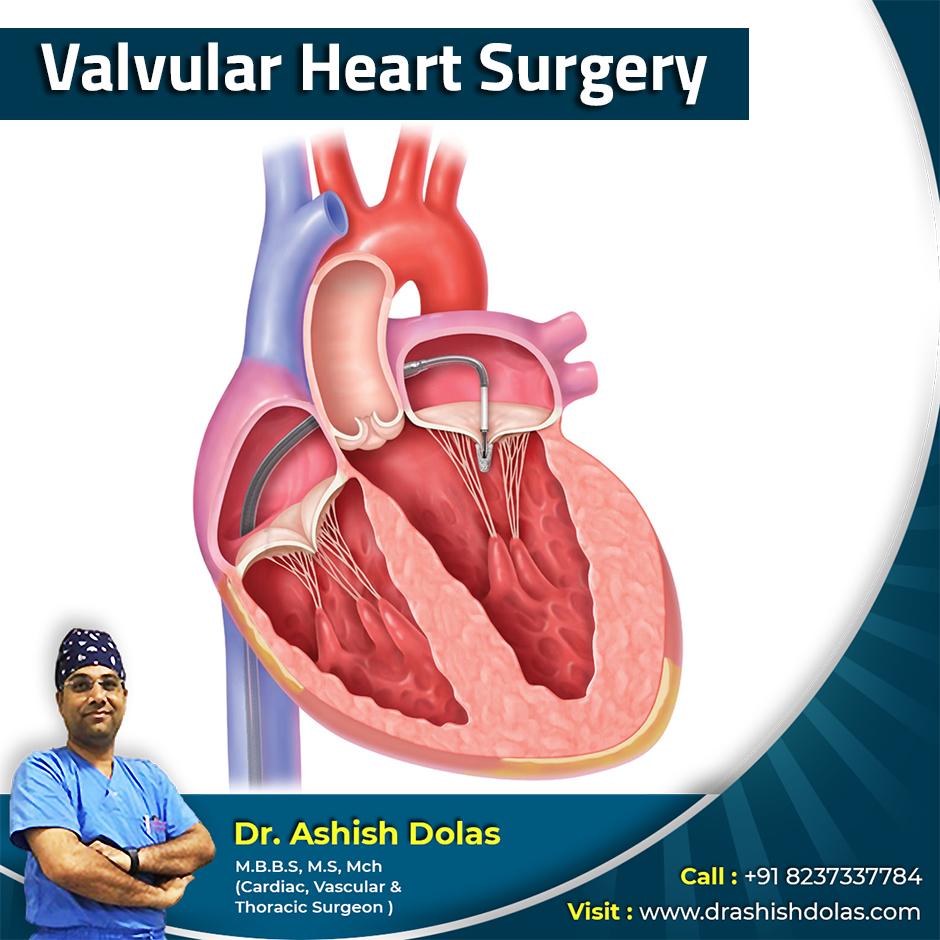 Valvular Heart Surgery_Dr. Ashish Dolas