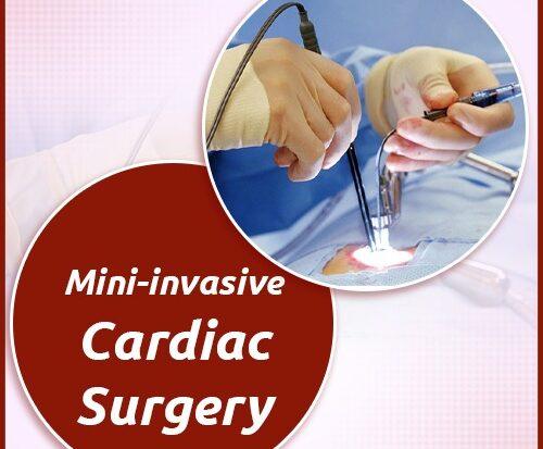 Mini-invasive Cardiac Surgery